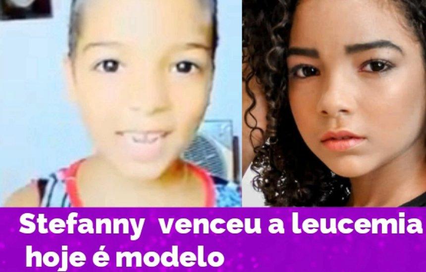 [Conheça Stefanny, a menina que venceu a leucemia e hoje é modelo]