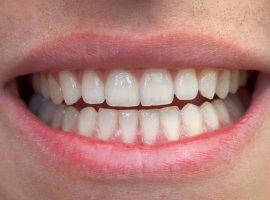 Solucao Caseira Para Remover Tartaro E Clarear Os Dentes