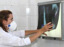 [Bahia é o 2º estado do Nordeste com maior número de casos de tuberculose]