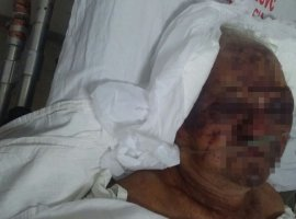 [Morre em hospital idoso agredido a pedradas durante assalto dentro de casa]