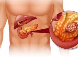 [Como evitar o câncer de pâncreas, um dos tipos mais difíceis de descobrir?]