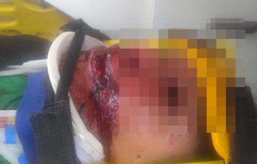 [Homem deixa mulher desfigurada após sessão de espancamento por causa de celular]