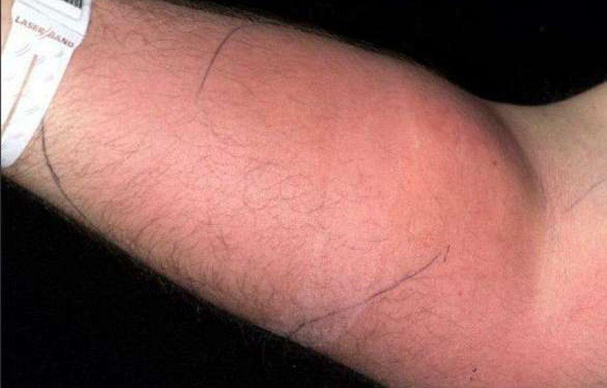 Homem injetou sêmen no braço por 18 meses para curar dor nas costas