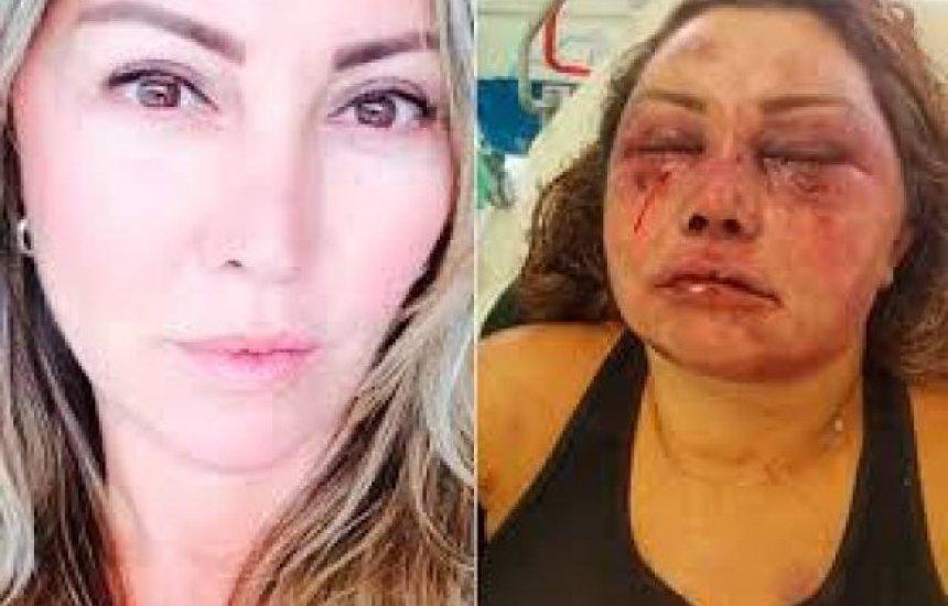 [Reconstrução de rosto de mulher espancada vai durar seis meses, diz médico]