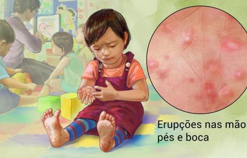 [Vigilância alerta para doença Mão-Pé-Boca em Camaçari]