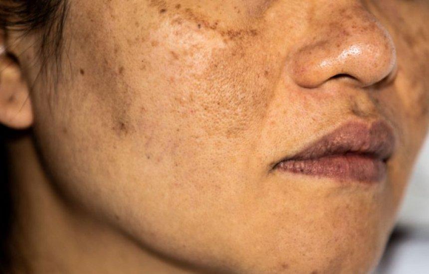1b72fbfc6 Como tirar manchas do rosto de melasma, sol, espinha e mais ...