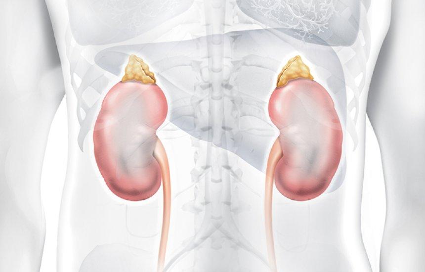 [Hipertensão renal: o que é, causas, diagnóstico e tratamento]