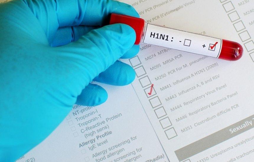 [Idoso de 69 anos morre vítima da gripe H1N1 em Salvador; é o 9º caso este ano]