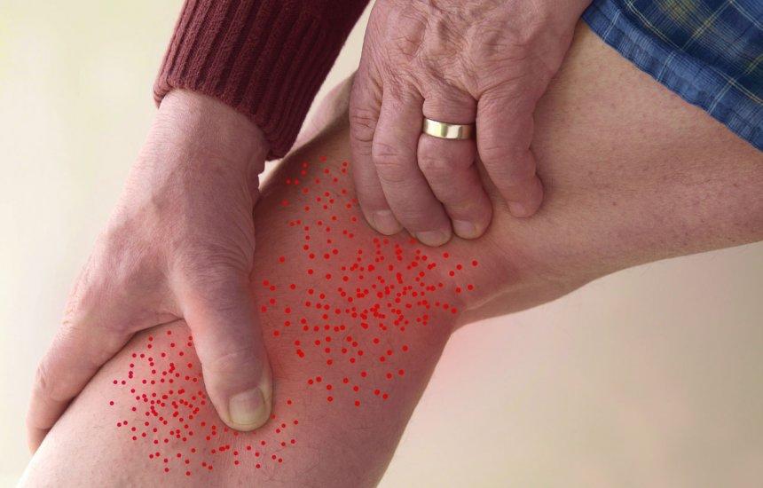 Melhor tratamento para dores nas pernas