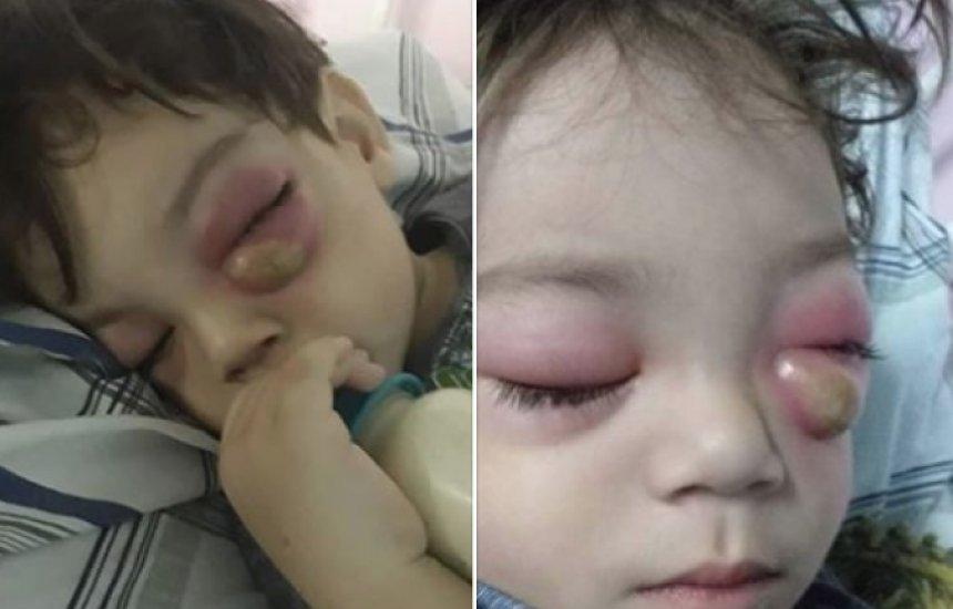 [Criança contrai grave condição após sinusite e mãe faz alerta]