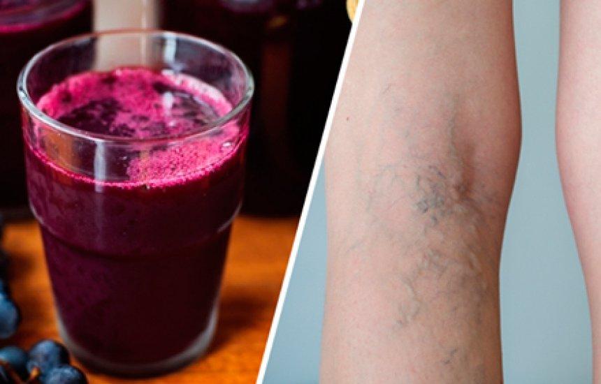 [Suco de uva: ótimo para tratar varizes]