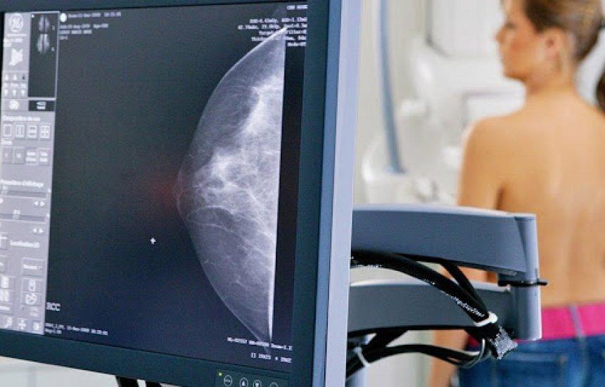 Câmara aprova ultrassom obrigatório para mulheres com risco de câncer
