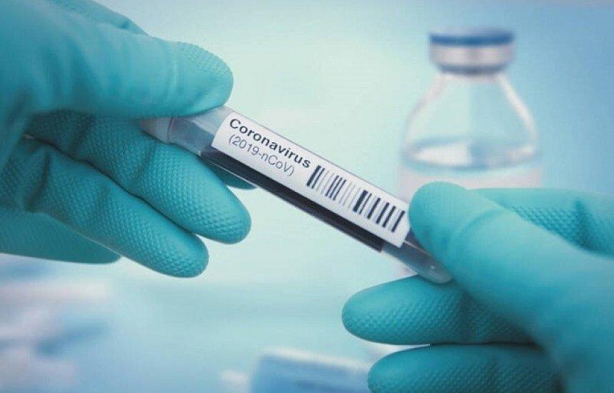 [Coronavírus avança e Bahia totaliza 8.443 casos confirmados e 295 mortes]