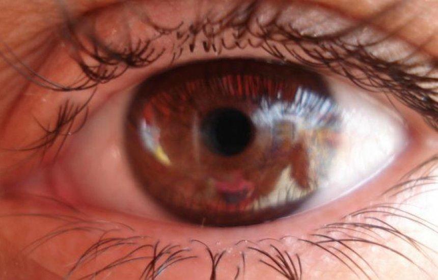 [É COVID-19 ou alergia ocular? Oftalmologista explica]