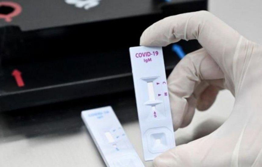 [ANS torna obrigatória cobertura de teste de covid-19 por planos de saúde]