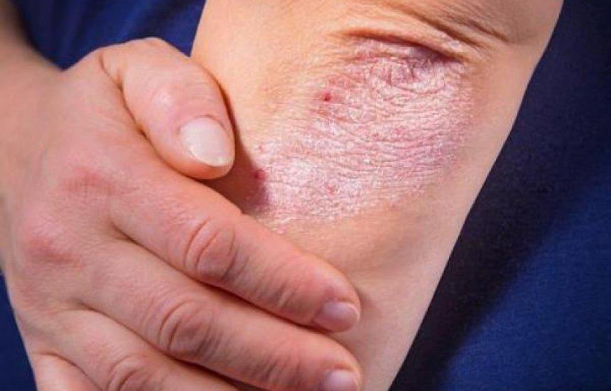 [Pele descascando: veja as causas e as soluções para tratar a derme]