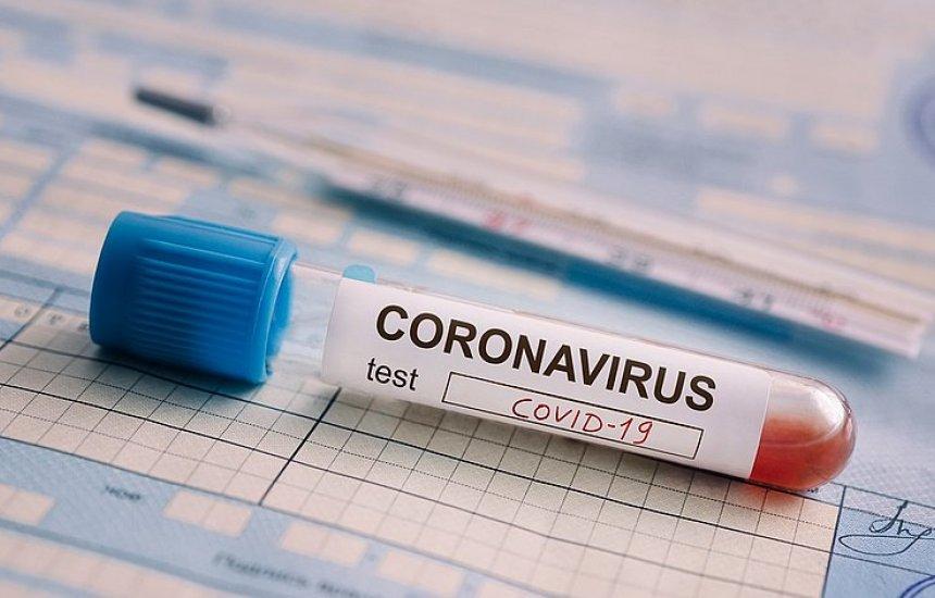 [Camaçari possui 136 casos ativos de coronavírus]