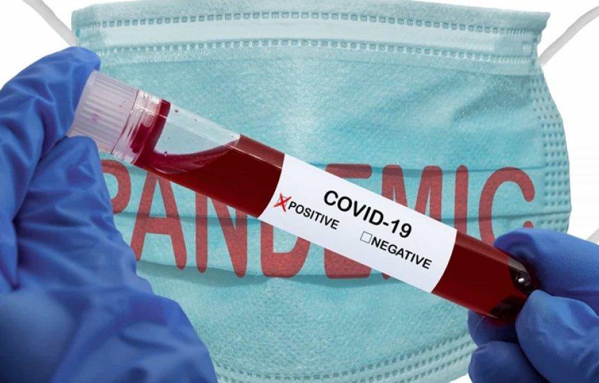 [Camaçari tem 160 casos ativos de coronavírus]